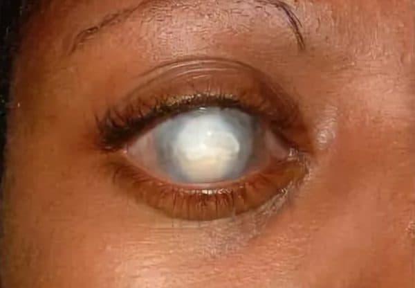 бельмо на глазу лечение